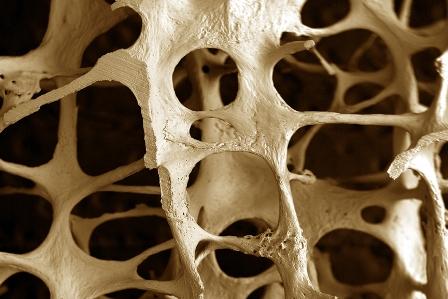 Dieta macrobiótica para osteoposoris